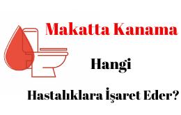 Makatta Kanama